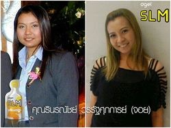 Ŵ���˹ѡ���� Agel SLM before and after