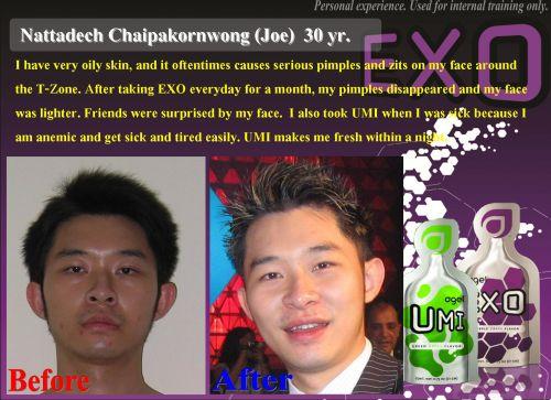 Exo เอ็กซ์โซ  ช่วยทำความสะอาดเซล ขจัดสารพิษในร่างกาย (อนุมูลอิสระ)