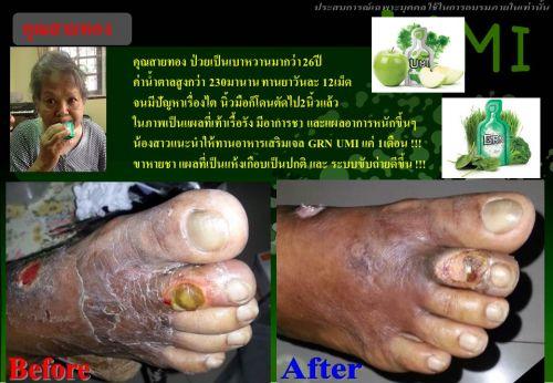 ผู้ป่วยเบาหวานไม่ต้องตัดเท้า สารอาหารลดน้ำตาล โรคเบาหวาน