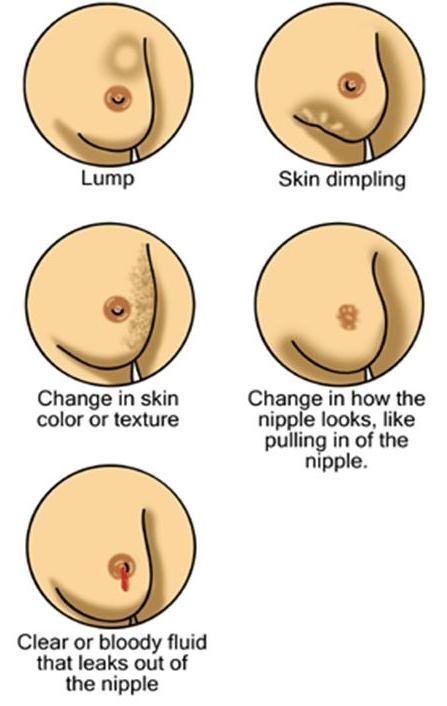 มะเร็งเต้านม